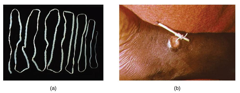 Hình 8. (a) Sán dây thịt bò, Taenia saginata , lây nhiễm cho cả gia súc và người. Trứng T. saginata có kích thước nhỏ (khoảng 50 µm), nhưng giun trưởng thành giống như ở đây có thể đạt tới 4–10 m, chiếm nơi cư trú trong hệ tiêu hóa. (b) Một con sâu guinea trưởng thành, Dracunculus medinensis , được loại bỏ thông qua một tổn thương ở da của bệnh nhân bằng cách quấn quanh một que diêm. (tín dụng a, b: sửa đổi công việc của Trung tâm Kiểm soát và Phòng ngừa Dịch bệnh)